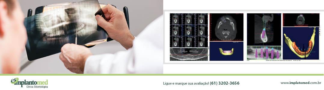 implante_implantes_dentario_dentarios_brasilia_distrito_federal_banners_implantomed_1078x300px152017